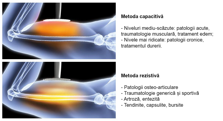 Terapia T.E.C.A.R. - Fisioline RADIANT® Monopolar - Bipolar - Tripolar