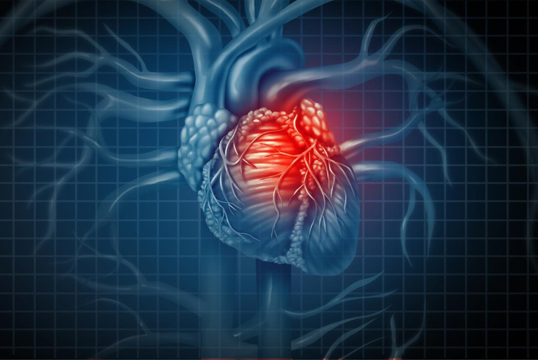 Semne și simptome ale unui atac de cord
